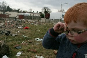 A young boy with glasses rubs his eyes outside in Dale Farm, which was once the site of the largest Irish Traveller concentration until families were evicted in 2011. A health impact assessment helped house this indigenous group, which accounts for 1 percent of the total population in Ireland.